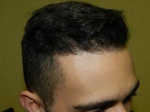 corrective hair surgery san jose