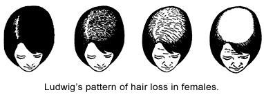 Women Hair Loss Pattern