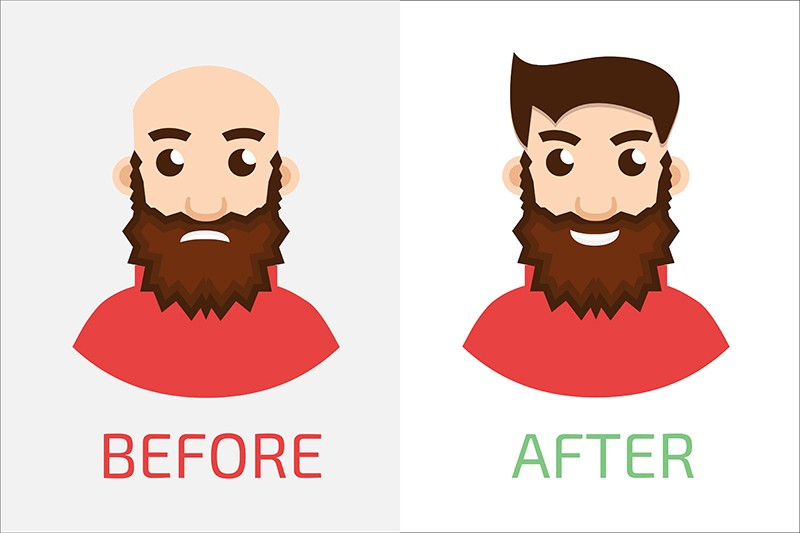 Fue hair transplant recovery process