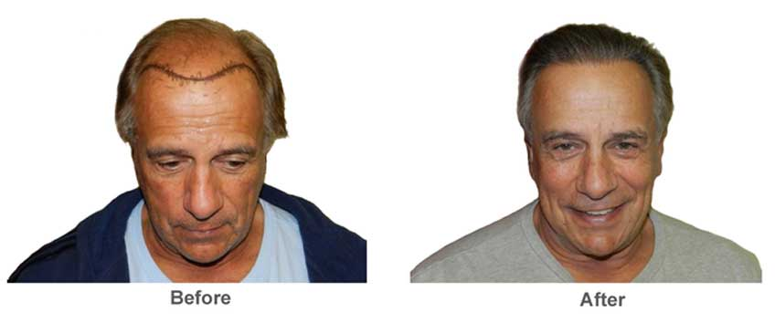 Medical Hair Transplant Aesthetics