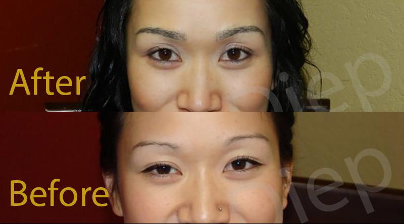 San Francisco eyebrow hair restoration surgery