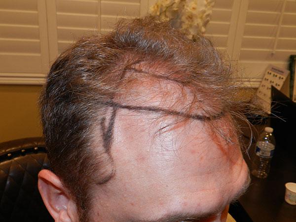 mens hair loss treatment san jose