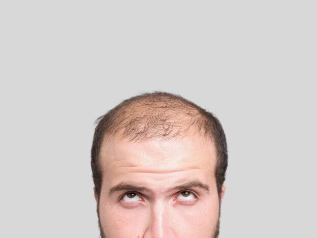 hairline surgery San Francisco, hair restoration Los Gatos